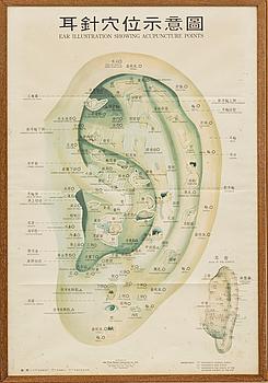 AFFISCH, akupunktur, 1900-talets mitt / senare hälft, Hong Kong.