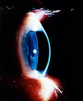 """304. LENNART NILSSON, """"Det mänskliga ögat"""", 1966 (The Human Eye)."""